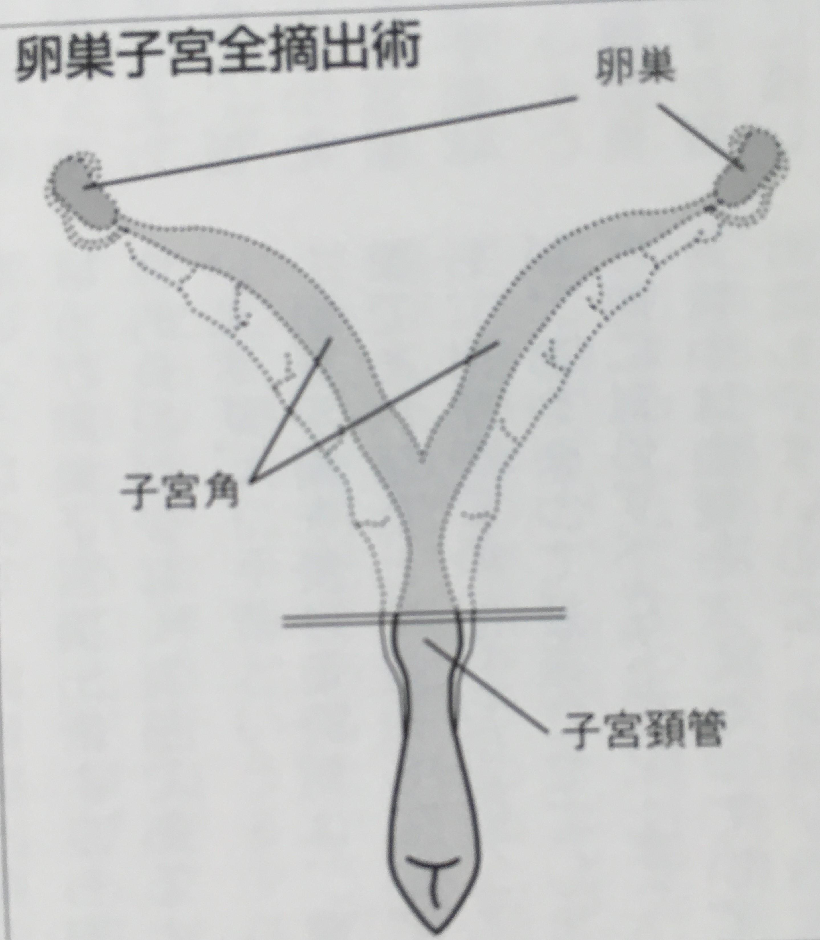 犬の卵巣と子宮の両方を摘出する手術